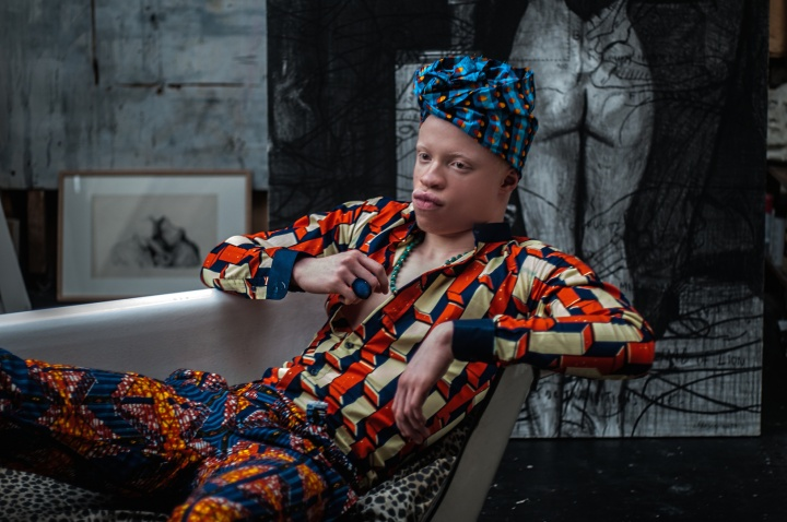 PIGMENTATIONS, contre la discrimination des albinos